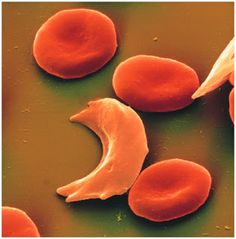 células falciformes