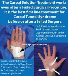 The Carpal Solution Treatment works  even after a Failed Surgical Procedure