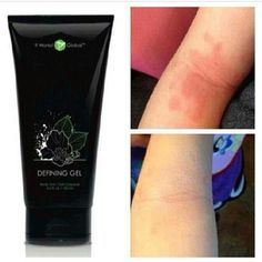 I love this stuff! I recommend this to everyone!  The It Works! Defining Gel has helped people with eczema, psoriasis, scars & cellulite.   Simply use 2x daily.  Its only made with natural ingredients.  To check out the It Works! Defining Gel and ingredients,  go to http://www.crystalluvswraps.com