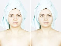 How To Get Rid Of Age Spots Fast & Safely