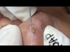 Whitehead Removal, Beauty Spa, Nasa, Weird, Skin Care, Tattoos, Videos, Youtube, Face Cleaning