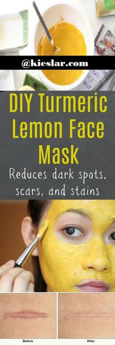 Face Mask For Scars, Dark Spots And Acne: Turmeric and Lemon Hey all.! Dark spots, scars and acne are big problem now a days. And they a...