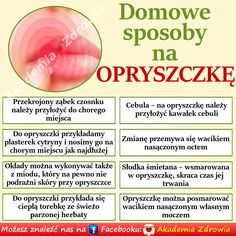 Domowe sposoby na opryszczkę - Zdrowe poradniki Healthy Tips, Healthy Recipes, Food Design, Body Care, Life Hacks, Hair Care, Remedies, Health Fitness, How To Make