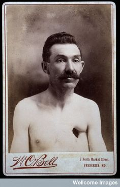 """ca. 1890-1900, """"Reverend Eavens, a man with a hole in his chest"""", W.C. Bell    Post-traumatic?  Healed tuberculous fistula?  No details re etiology at the Wellcome Images source. via source."""