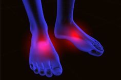 Treatment of Peripheral Neuropathy, Causes, Symptoms | Natural Herbs Clinic - Herbal Alternative Medicine