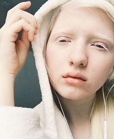 14 Models With Albinism Who Are Taking The Fashion World By Storm