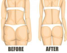Reduce Water Retention Looking for ways to get rid of cellulite from your body? What is cellulite in the first place? Cellulite is a medical condition in which the skin, mainly on the abdomen, pelvic region and thighs, becomes dimpled. What Is Cellulite, Reduce Cellulite, Cellulite Cream, Anti Cellulite, Cellulite Remedies, Cellulite Workout, Cellulite Scrub, Fitness Goals, Yoga Fitness