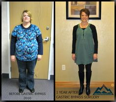 Rocky Mountain Associated Physicians, located in Salt Lake City, Utah, has been performing weight loss surgery since 1979 Weight Loss Before, Best Weight Loss, Weight Loss Tips, Lose Weight, Gastric Bypass Surgery, Bariatric Surgery, Bariatric Sleeve, Sleeve Surgery, Weight Loss Pictures