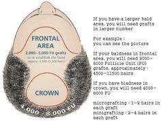 http://www.hairtransplantdubai.com/hair-transplant-procedure/hair-transplant-cost-in-dubai-uae/