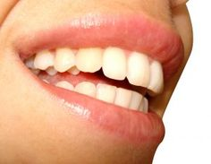 How To Whiten Teeth Naturally : Top 3 Cleaners That You Can Find In Your Kitchen