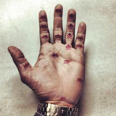 Sick hand