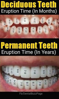 Oral B Electric Toothbrush is one of the famous toothbrush in the market. We have some tips for you why you need Oral B Electric tootbrush Dental Assistant Study, Dental Hygiene Student, Dental Humor, Dental Implants, Dentist Jokes, Kids Dentist, Implant Dentistry, Dental Surgery, Dental Health