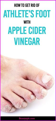 Athlete's foot, also known as tinea pedis,is a fungal infection affects feet's skin.Here are effective ways to use Apple Cider Vinegar for Athletes Foot