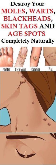 Natural Ways To Remove Moles, Warts, Blackheads, Skin Tags And Dark Spots