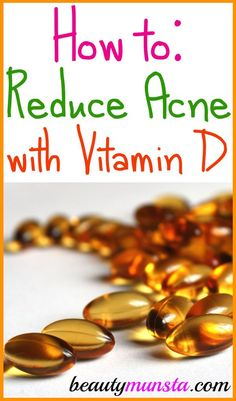 Is Vitamin D Good for Acne? - beautymunsta - free natural beauty hacks and more! Pimples On Buttocks, Pimples On Chin, Pimples On Forehead, Pimples Under The Skin, How To Get Rid Of Pimples, Pimples Remedies, Skin Care Remedies, Oily Skin Treatment, Coconut Oil For Acne