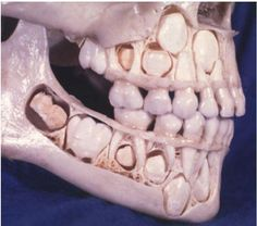 Child's skull. Creepy, but interesting picture!