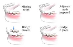 WHAT IS A BRIDGE?  Bridges offer a permanent, fixed replacement for one or more missing teeth. The teeth either side of the gap are prepared by your dentist and the replacement teeth are bonded to these teeth to 'bridge the gap'. Using a bridge helps prevent the remaining teeth from drifting out of position if an empty space is left uncorrected which can cause bite problems and some discomfort.