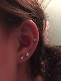mid cartilage & double lobe