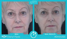 Try Instantly Ageless and see how adding just 2 minutes to your beauty routine can clear away eye bags, wrinkles, and other visible signs of aging for up to 9 hours! https://multibra.in/6wqtr