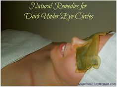 Natural remedies for dark under eye circles via Health Extremist