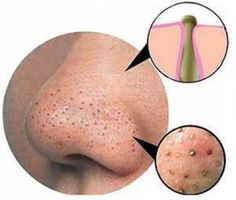 """INTERESTING FACTS: """"How to we get rid of blackheads and whiteheads"""""""