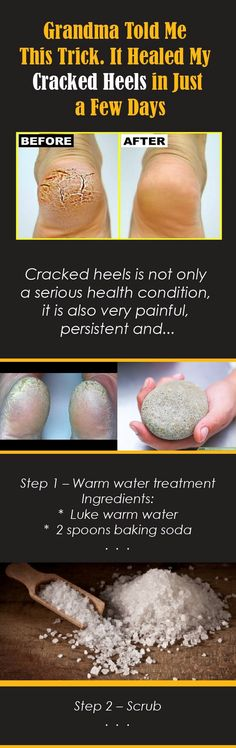 Cracked heels is not only a serious health condition, it is also very painful, persistent and can impair the quality of life. However, there is an easy solution to this problem, which will take you a couple of simple ingredients and a little of your precious time. After you're done, you can enjoy watching you Continue Reading