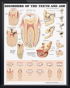 Disorders of the a Teeth and Jaw anatomy poster illustrates periodontal disease, three stages of dental cavities, abscess formation and TMJ. Dentistry chart for doctors and nurses. Remember June I Love My Dentist Day each June 2nd.