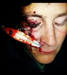So how bad was your hook injury for Fishing hook accidents