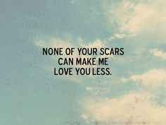 Non of your scars can make me love you less