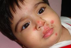 Pictures of Baby Rashes - Categorized, with Treatment Suggestions - http://mommyhood101.com