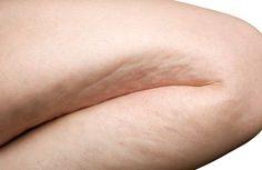 Einfache Übungen gegen Zellulitis