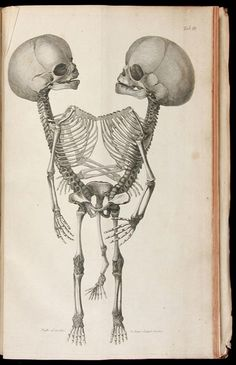 a Piece of Morbid Medical History Vintage Medical illustration really cool concept could explore history of medicine and could link in with ideaVintage Medical illustration really cool concept could explore history of medicine and could link in with idea Medical Art, Medical History, Illustrations Médicales, Medical Illustrations, Stencil, Conjoined Twins, Anatomy Art, Anatomy Drawing, Skull Anatomy