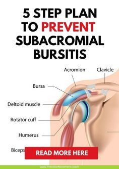 Don't give in to shoulder pain! Here's are some effective ways to treat and prevent subacromial bursitis. Shoulder Pain Exercises, Shoulder Injuries, Shoulder Workout, Shoulder Bursitis Treatment, Bursitis Shoulder, Shoulder Pain Relief, Neck And Shoulder Pain, Frozen Shoulder Treatment, Shoulder Anatomy