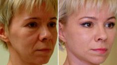 No botox - 15 years younger guaranteed Beauty Skin, Health And Beauty, Hair Beauty, Anti Aging, Belleza Natural, Skin Cream, Skin Treatments, Cellulite, Health Fitness
