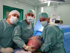 Campobasso asportato tumore da 125 kg a una 37enne