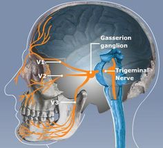 Ayurvedic Treatment for Trigeminal Neuralgia Disease Nerve Anatomy, Brain Anatomy, Medical Anatomy, Body Anatomy, Anatomy And Physiology, Facial Nerve, Craniosacral Therapy, Trigeminal Neuralgia, Cranial Nerves