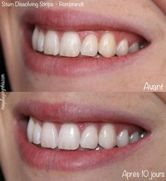 5 façons de blanchir les dents
