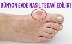 BÜNYON NASIL TEDAVİ EDİLİR? BÜNYON NASIL GEÇER? Ayak baş parmağının yanında oluşan kemik çıkıntısı bünyon, ilk oluştuğu anda önlem al...