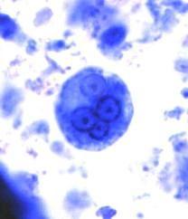 Entamoeba Histolytica cyst (parasite in stool)