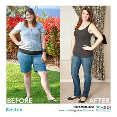 """Kristen's weight loss Story: I have lost a total of 50 pounds in 5 months! I had been the """"chubby"""" girl since the third grade, and as I got older the """"curvy"""" girl. It wasn't the body image I had planned for or the one I wanted, but I had come to accept the fact that this was the way I was. Unfortunately, it was just the result of bad eating habits. As the pounds started to gradually increase, my self-confidence started to plummet...click image to read entire story."""