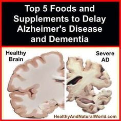 Top 5 Foods and Supplements to Delay Alzheimer's Disease and Dementia