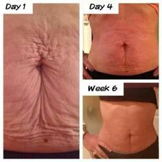 Baby mamas with loose skin, these are her results with Nerium AD. I use Nerium on my face each night, but I will now put this on my own loose belly skin. I'm just so happy for her.