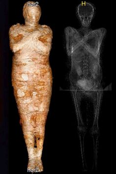Egyptian Mummies, 1st Century, National Museum, Ny Times, Archaeology, Mushrooms, Discovery, Science, York