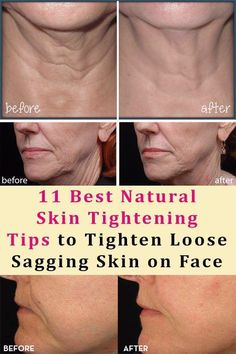 home skin care #howtotightenlooseskinonface Natural Skin Tightening, Skin Tightening Cream, Natural Skin Care, Natural Health, Face Tightening, Natural Facial, Tighten Stomach, Tighten Loose Skin, Fast Weight Loss Diet