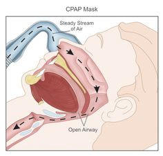 CPAP working!