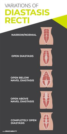 Diastasis Recti (Abdominal Muscle Separation) Diastasis recti is a postpartum body problem no one seems to talk about. Learn about the different types and variations of abdominal muscle separation, which is incredibly common among. Healing Diastasis Recti, Diastasis Recti Exercises, Ab Exercises, Transverse Abdominal Exercises, What Is Diastasis Recti, Stretches, Workout Routine For Men, Abs Workout For Women, Excercise For Pregnant Women