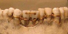 La evidencia más temprana de la odontología antigua que tenemos es un trabajo dental increíblemente detallados sobre una momia del antiguo Egipto que los arqueólogos han fechado en el año 2000 a.C