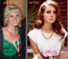Lana Del Rey Before Plastic Surgery Always interesting what you can find when you type in surgeons and other related terms Plastic Surgery Photos, Celebrity Plastic Surgery, Mad Men Hair, Lana Del Rey Hair, Botox Brow Lift, Celebrities Before And After, Ugly To Pretty, Natural Skin Care, Celebs