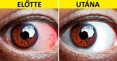 8 gyakorlat fáradt szemekre   Kuffer
