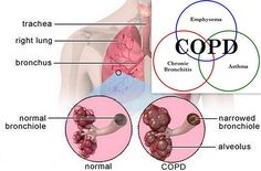 COPD- SLICK 1: Diffuse eucalyptus, frankincense and lemon SLICK 2: Diffuse Peppermint, Lemon and Rosemary Use RC Neat